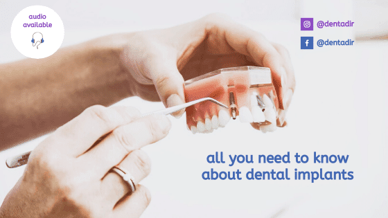 all you need to know about dental implants in 2020