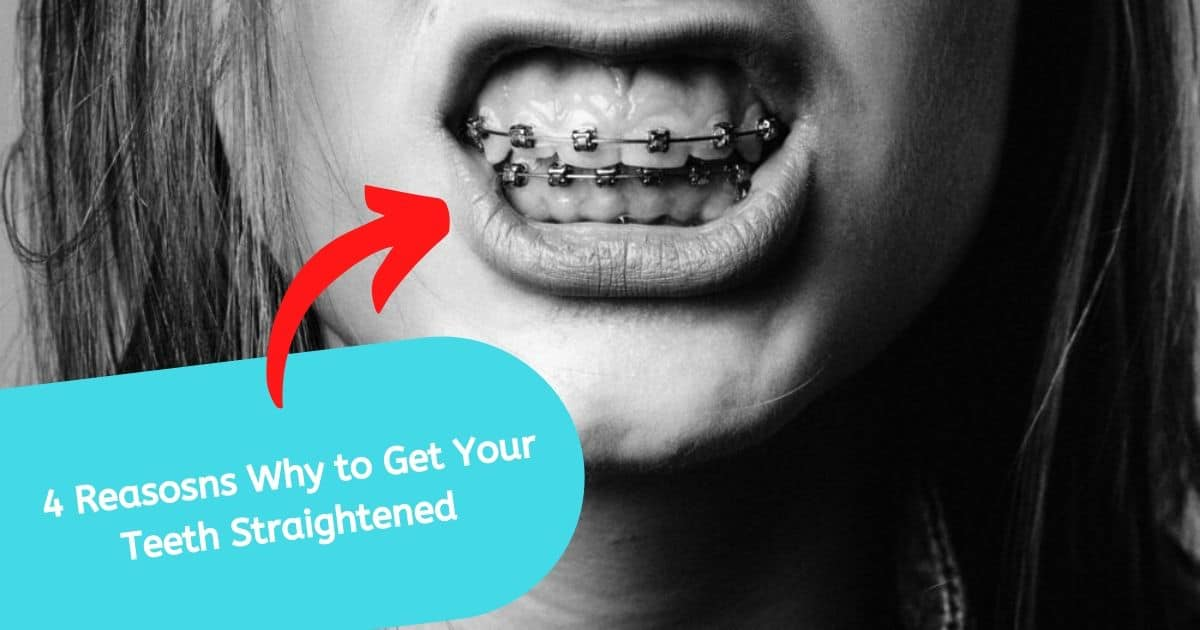4 Reasons You Need to Get Your Teeth Straightened